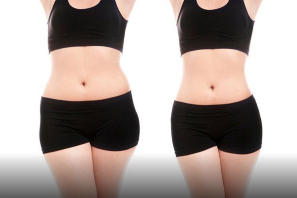 công nghệ giảm béo lipo hifu,giảm béo bằng công nghệ hifu,công nghệ giảm mỡ lipo hifu