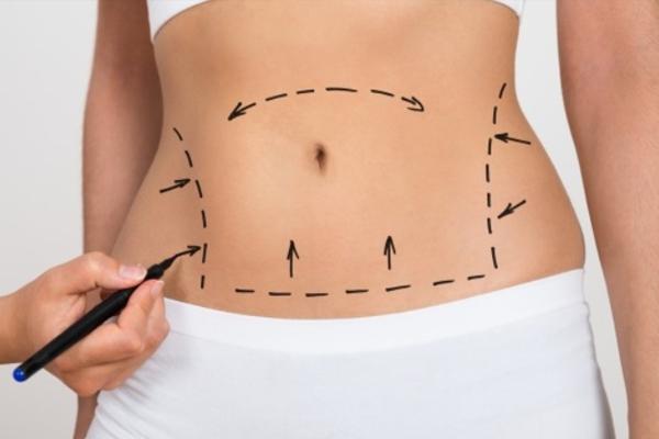 Giảm béo Max Thin Lipo có an toàn không? Chi phi giảm béo toàn thân thế nào
